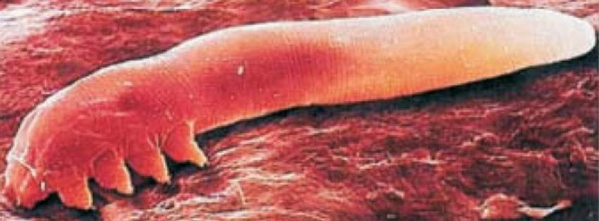 5 + 1 gyakori tünet, ami a testben lakozó parazitákra utalhat